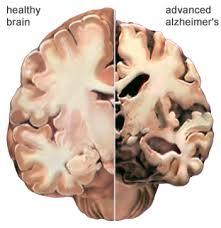 healthy brain / Alzheimer's brain comparison